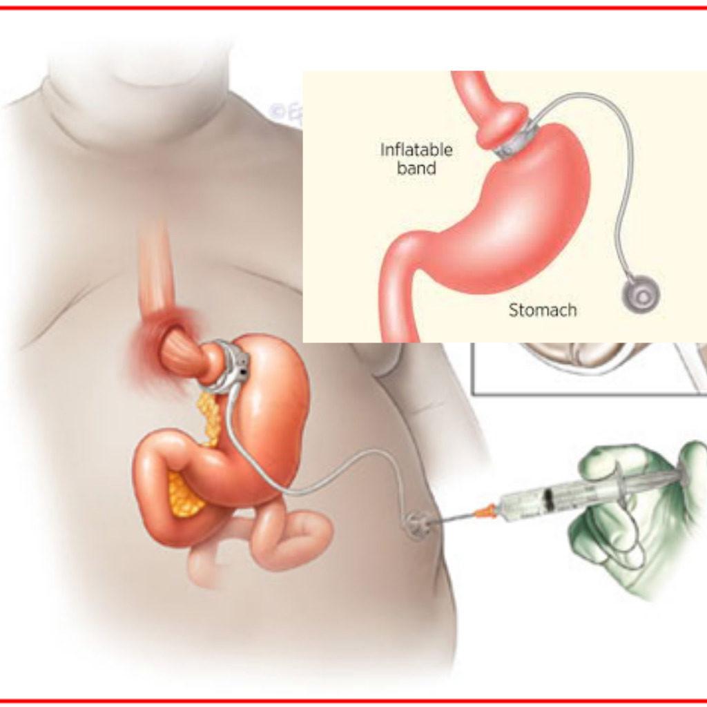 Medicaid weight loss surgery